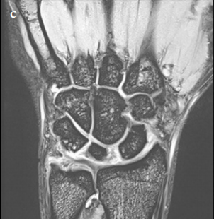 Palmar-divergent dislocation of the scaphoid and lunate treated using percutaneous pinning and pin-in-plaster: A case report